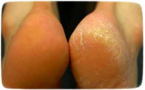 трещины на пятках, как вылечить или предотвратить их появление